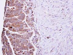 IL-22 Antibody (PA5-34753)