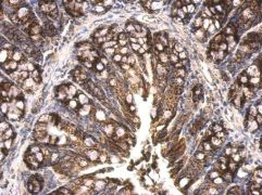 HSP60 Antibody (PA5-34760)