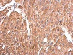 DRP1 Antibody (PA5-34768)
