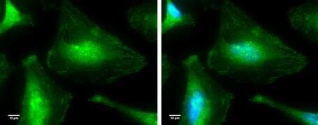 p38 MAPK alpha Antibody (PA5-34769)