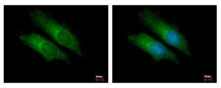 Bcl-10 Antibody (PA5-34800)