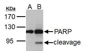 PARP Antibody (PA5-34803)