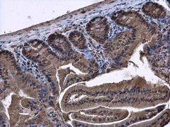 SMAD4 Antibody (PA5-34806)