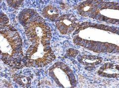 ALDH1A1 Antibody (PA5-34901)