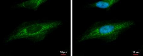 beta Dystroglycan Antibody (PA5-34908)