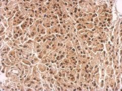 IKZF4 Antibody (PA5-34963)