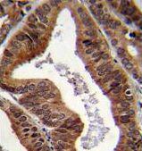 EAP2 Antibody (PA5-35039)