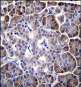 MYBPHL Antibody (PA5-35074)