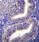 TBPL2 Antibody (PA5-35109)