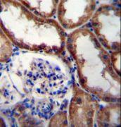 WNT16 Antibody (PA5-35131)