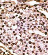 ATG9A Antibody (PA5-35205)