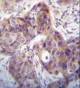 Kallikrein 6 Antibody (PA5-35312)