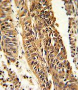 CYP4B1 Antibody (PA5-35352)