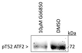 Phospho-ATF2 (Thr52) Antibody (PA5-35391)