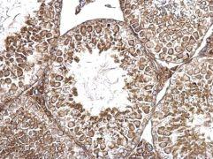 AMH Antibody (PA5-35851)