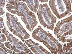 DOK6 Antibody (PA5-35875)