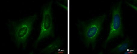 Phospho-eNOS (Ser1177) Antibody (PA5-35879)