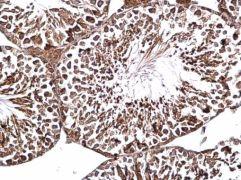 HIPK4 Antibody (PA5-35891)