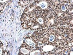 MCM6 Antibody (PA5-35923)
