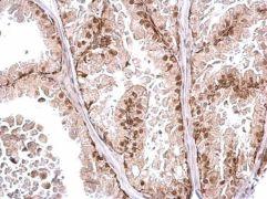 POLR2D Antibody (PA5-35953)
