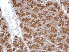 SYTL4 Antibody (PA5-35992)