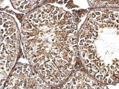 TMF1 Antibody (PA5-35997)