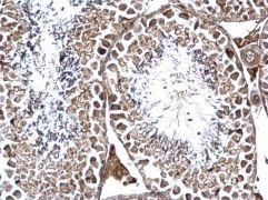 GPN1 Antibody (PA5-36009)