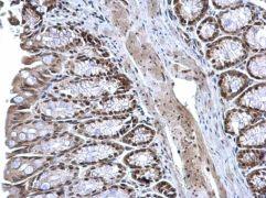 ZFP82 Antibody (PA5-36011)