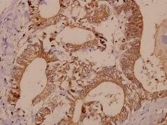 PAK1/2/3 Antibody (PA5-36102)