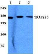 TRAP220 Antibody (PA5-36200)