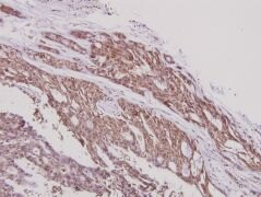ARTS1 Antibody (PA5-36218)