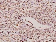 FOXC1/FOXC2 Antibody (PA5-36261)