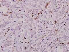 Laminin gamma-1 Antibody (PA5-36300)