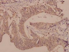DGKQ Antibody (PA5-36313)