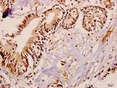 ME3 Antibody (PA5-36494)