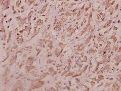 RPL7 Antibody (PA5-36571)