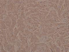 Phospho-JAK1 (Tyr1022) Antibody (PA5-36657)