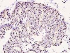Phospho-LIMK1 (Thr508) Antibody (PA5-36663)