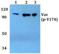 Phospho-VAV1 (Tyr174) Antibody (PA5-36699)
