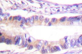 Phospho-c-Cbl (Tyr674) Antibody (PA5-36735)