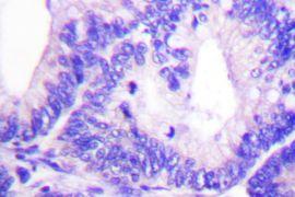 Phospho-WAVE1 (Tyr125) Antibody (PA5-36760)