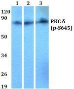 Phospho-PKC delta (Ser645) Antibody (PA5-36777)