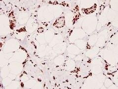 Phospho-CREB (Ser129) Antibody (PA5-36843)