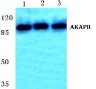 AKAP8 Antibody (PA5-36921)
