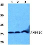 ANP32C Antibody (PA5-37020)