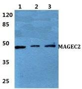 MAGEC2 Antibody (PA5-37071)