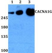 Calcium Channel 1G Antibody (PA5-37236)