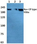 SCN8A Antibody (PA5-37276)