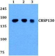 CRSP130 Antibody (PA5-37444)