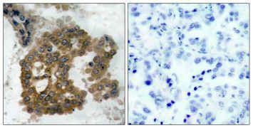 Phospho-AKT2 (Ser474) Antibody (PA5-37470)